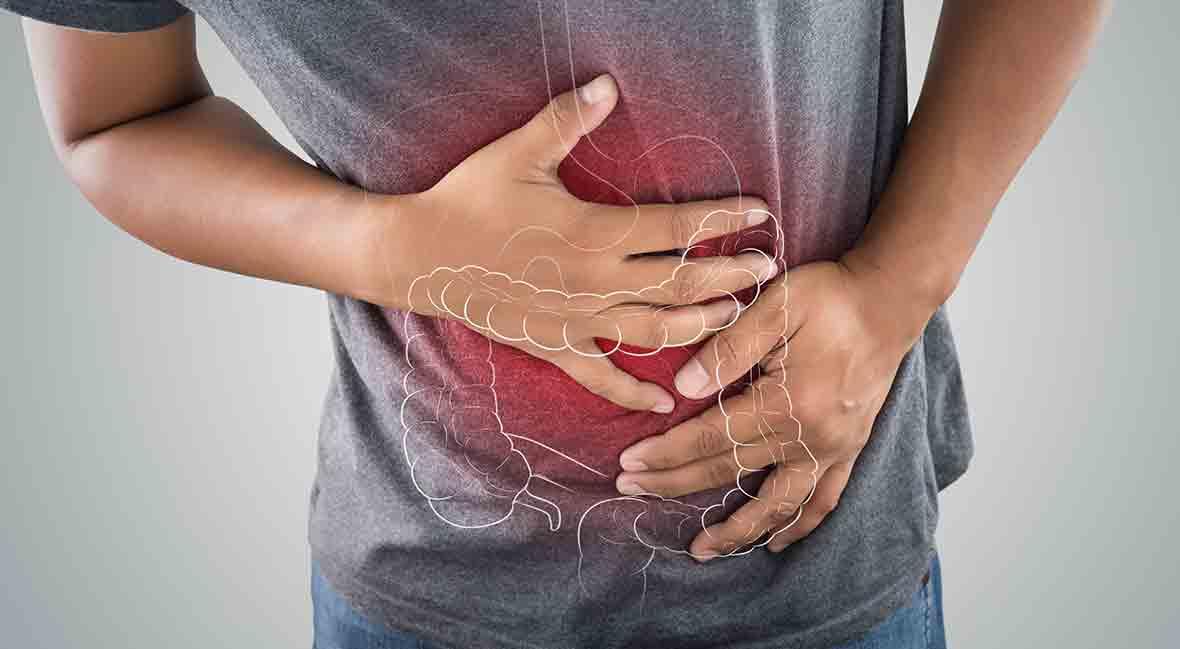 Ulcerative Colitis 101